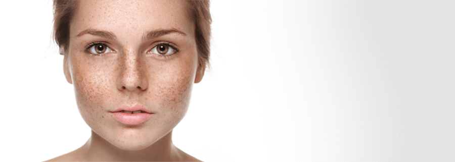 hyperpigmentation on skin